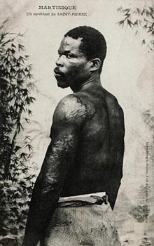 Louis Auguste Cyparis - felon survivor