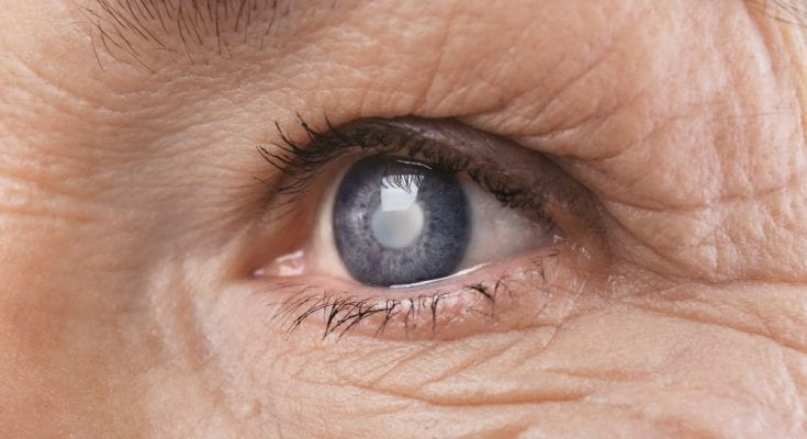 A Brief History of Glaucoma Treatment